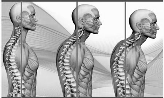 how-to-fix-bad-posture-with-bodyweight-exercises-hoem