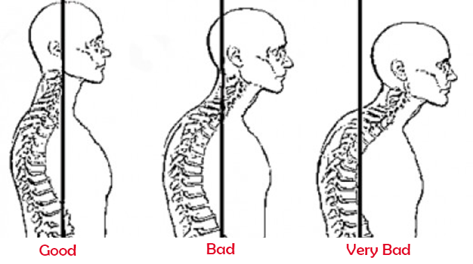 how-to-fix-the-forward-head-posture